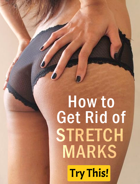 Stretch Marks: How to Get Rid of Stretch Marks in 2 Weeks