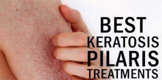 10 Best Keratosis Pilaris Treatments
