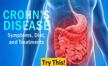 Crohn's Disease Symptoms, Diet, and Treatments