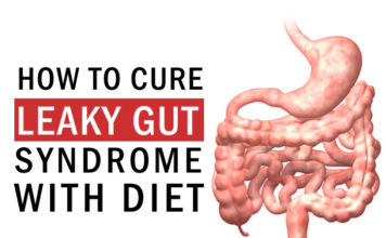 How to Cure Leaky Gut Syndrome with Diet