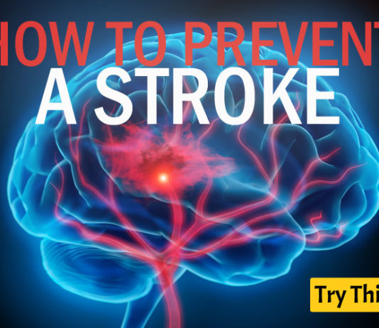 10 Best Ways to Prevent a Stroke