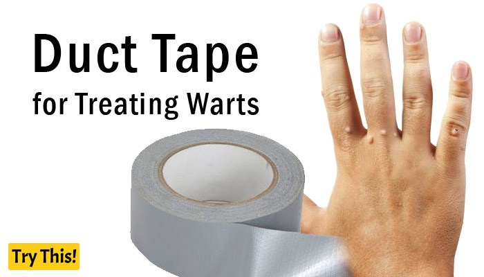 Duct Tape as a Home Remedy for Warts