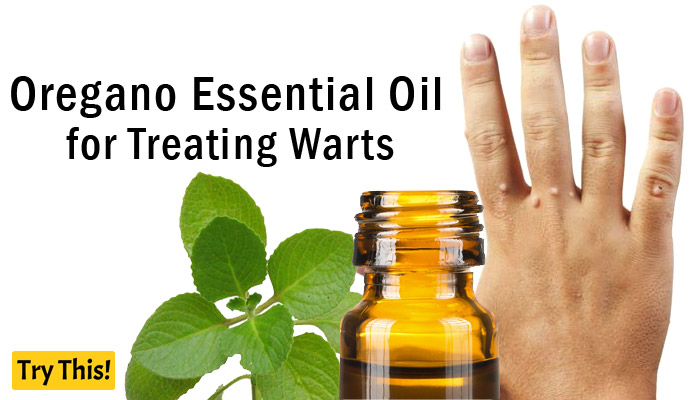 Oregano Essential Oil as a Home Remedy for Warts
