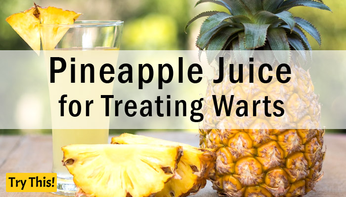 Pineapple Juice as a Home Remedy for Warts