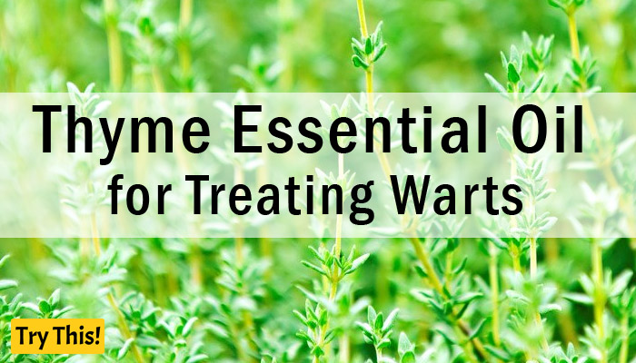 Thyme Essential Oil as a Home Remedy for Warts