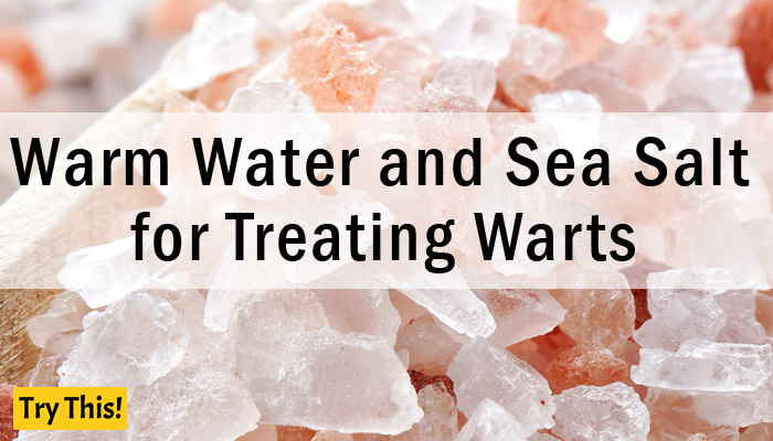 Warm Water and Sea Salt as a Home Remedy for Warts