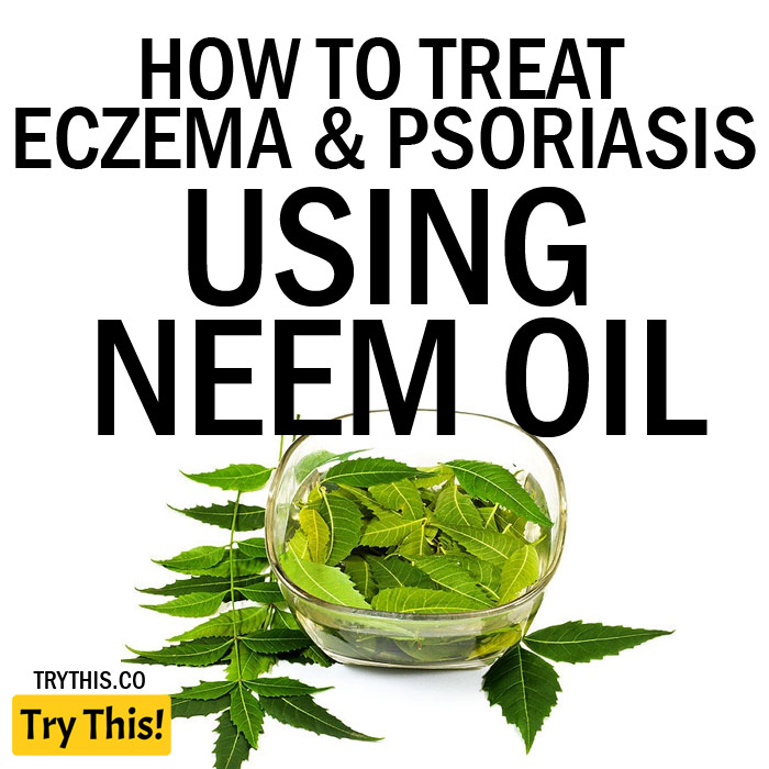 How to Treat Eczema and Psoriasis Using Neem Oil