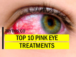 What Causes Pink Eye? Top 10 Pink Eye Treatments