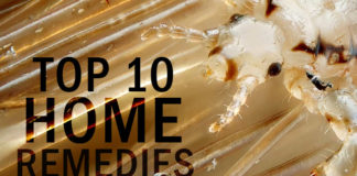 Lice in Hair: Top 10 Home Remedies for Lice