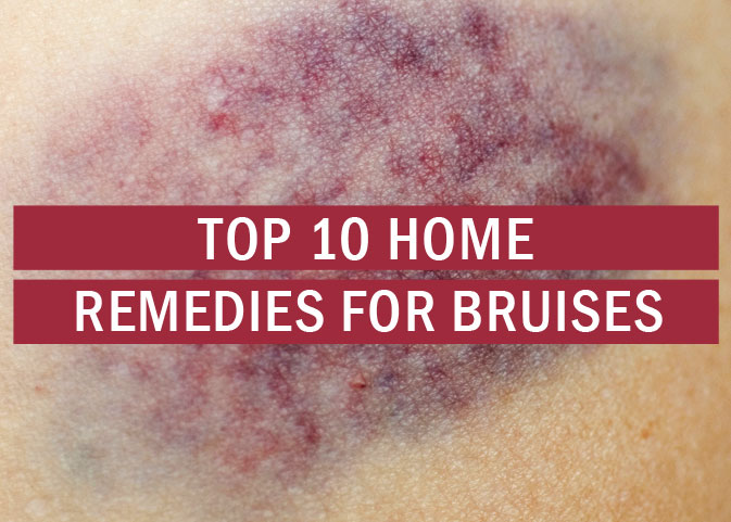 Top 10 Home Remedies for Bruises