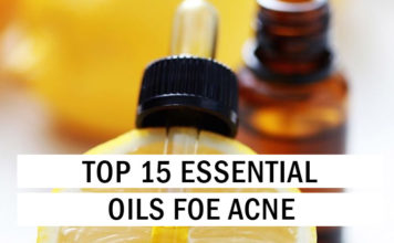 Top 15 Essential Oils for Acne