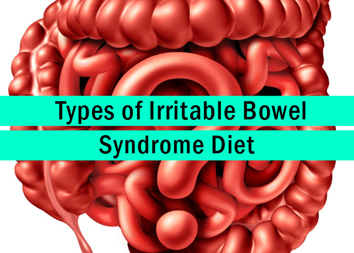 diet and health irritable bowel syndrome Diet, eating and ibs symptoms there are a variety of factors that affect ibs, and diet is just one of these if other factors, such as stressors or hormonal changes, are more active on a particular day, then dietary triggers are more likely to push your symptoms over the edge.