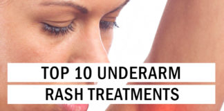 No More Itchy Armpits: Top 10 Underarm Rash Treatments