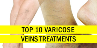What Causes Varicose Veins? Top 10 Varicose Veins Treatments