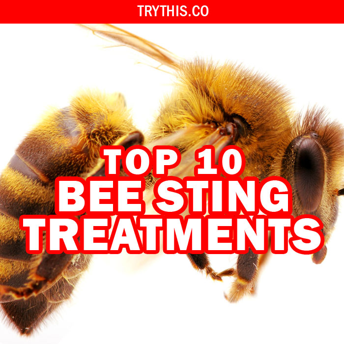 What to do For a Bee Sting? Top 10 Bee Sting Treatments