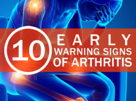 10 Early Warning Signs of Arthritis