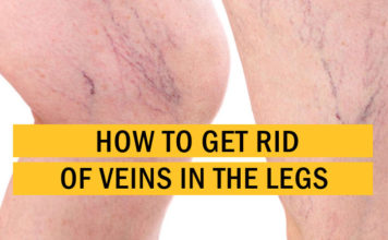 How to Get Rid of Veins in the Legs